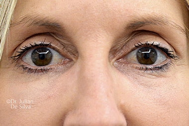 Woman's face, after Eyelid Surgery (Blepharoplasty) Treatment, front view, patient 141