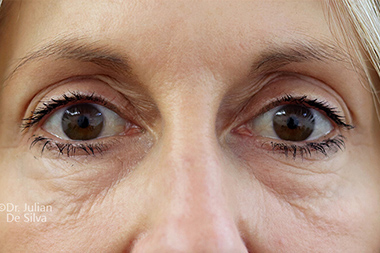 Woman's face, before Eyelid Surgery (Blepharoplasty) Treatment, front view, patient 141