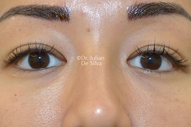 Woman's face, before Asian Blepharoplasty, front view, patient 17