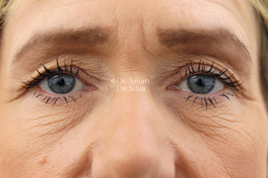 Woman's face, before Eyelid Surgery (Blepharoplasty) Treatment, front view, patient 137