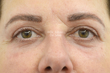 Woman's face, after Eyelid Surgery (Blepharoplasty) Treatment, front view, patient 138