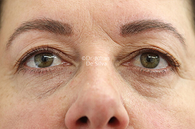 Woman's face, before Eyelid Surgery (Blepharoplasty) Treatment, front view, patient 138