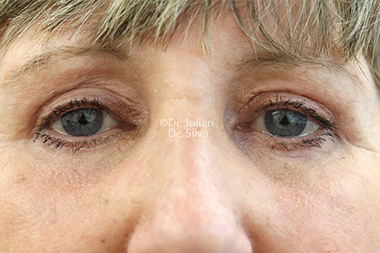 Woman's face, after Eyelid Surgery (Blepharoplasty) Treatment, front view, patient 139