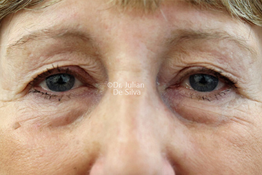 Woman's face, before Eyelid Surgery (Blepharoplasty) Treatment, front view, patient 139