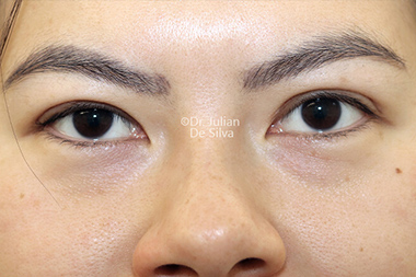 Woman's face, After Asian Blepharoplasty, front view, patient 18