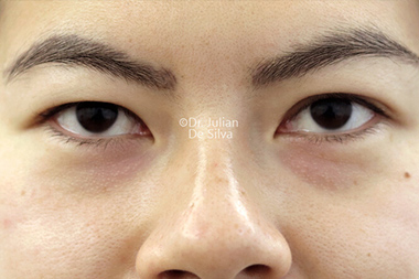 Woman's face, before Asian Blepharoplasty, front view, patient 18