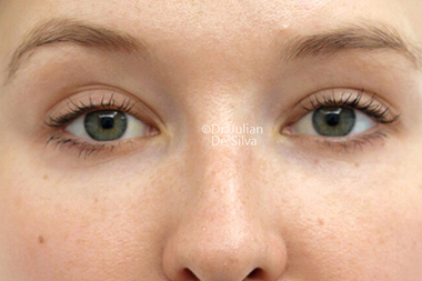 Woman's face, after Eyelid Surgery (Blepharoplasty) Treatment, front view, patient 140