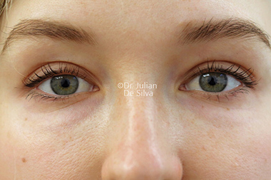 Woman's face, before Eyelid Surgery (Blepharoplasty) Treatment, front view, patient 140