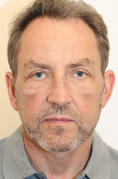 Male face, After Facelift and Neck Lift Treatment, front view, patient 51
