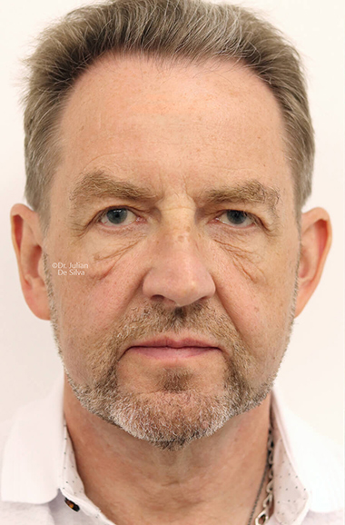 Male face, Before Facelift and Neck Lift Treatment, front view, patient 51