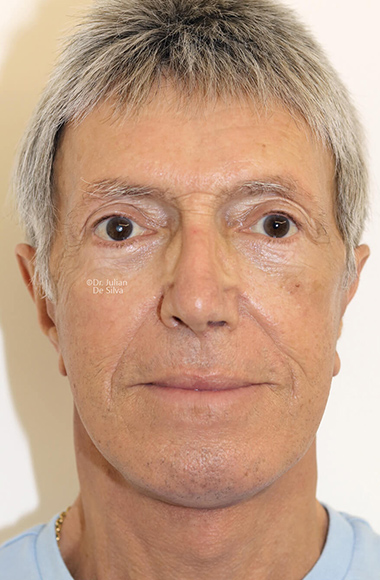 Male face, After Facelift and Neck Lift Treatment, front view, patient 52