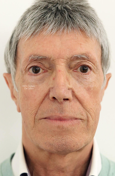 Male face, Before Facelift and Neck Lift Treatment, front view, patient 52