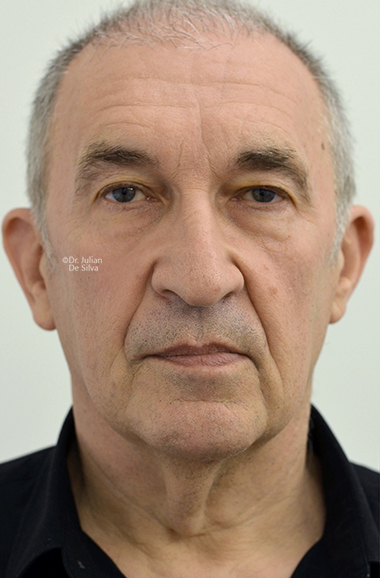 Male face, Before Facelift and Neck Lift Treatment, front view, patient 53
