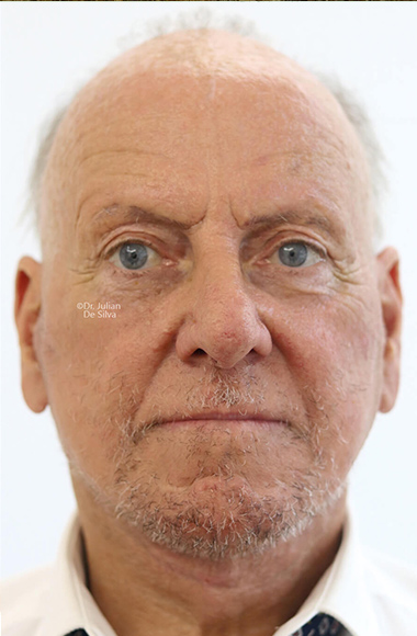 Male face, After Facelift and Neck Lift Treatment, front view, patient 49