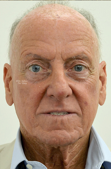 Male face, Before Facelift and Neck Lift Treatment, front view, patient 49