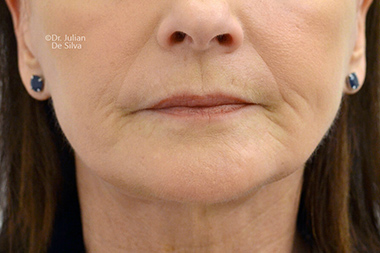 Female face, After Facelift and Neck Lift Treatment, front view, patient 50