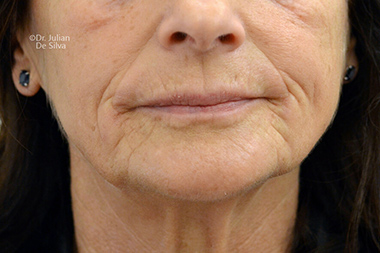Female face, Before Facelift and Neck Lift Treatment, front view, patient 50