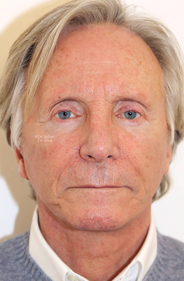 Male face, After Facelift and Neck Lift Treatment, front view, patient 54
