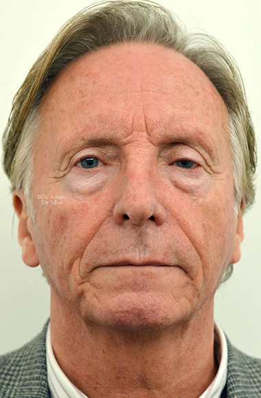 Male face, Before Facelift and Neck Lift Treatment, front view, patient 54