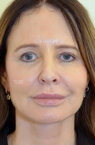 Female face, After Facelift and Neck Lift Treatment, front view, patient 55
