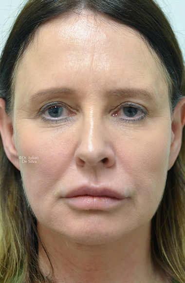 Female face, Before Facelift and Neck Lift Treatment, front view, patient 55