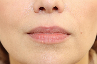 Woman's lips, Before Lip Augmentation and Reduction treatment, front view, patient 16