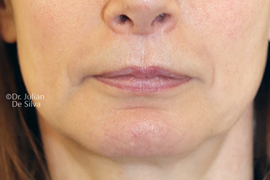 Woman's lips, After Lip Augmentation and Reduction treatment, front view, patient 17