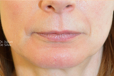 Woman's lips, Before Lip Augmentation and Reduction treatment, front view, patient 17