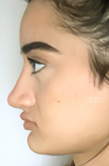 Female face, after Nose Re-Shaping treatment, side view, patient 104