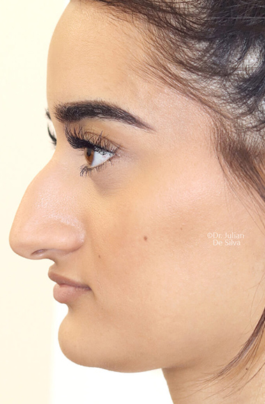 Female face, before Nose Re-Shaping treatment, side view, patient 104