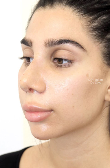 Female face, after Nose Re-Shaping treatment, oblique view, patient 105