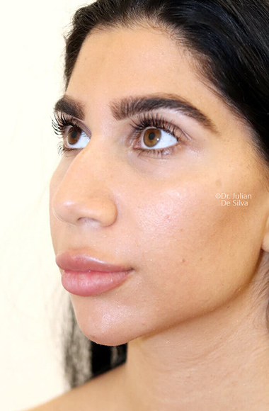Female face, before Nose Re-Shaping treatment, oblique view, patient 105