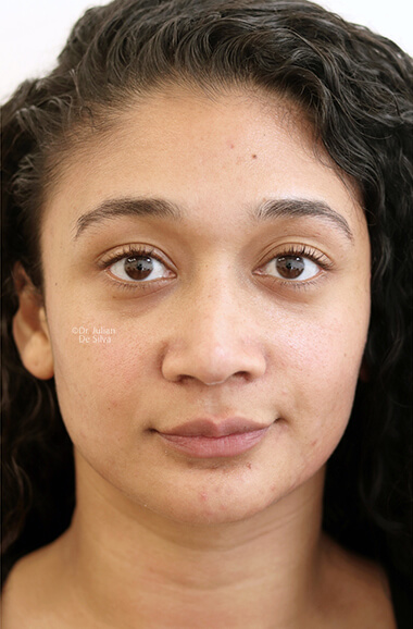 Female face, after Nose Re-Shaping treatment, front view, patient 106