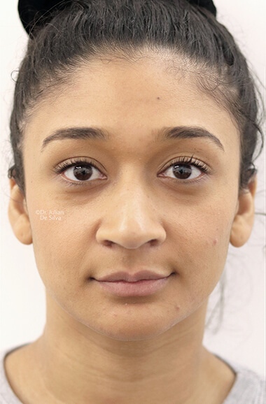 Female face, before Nose Re-Shaping treatment, front view, patient 106