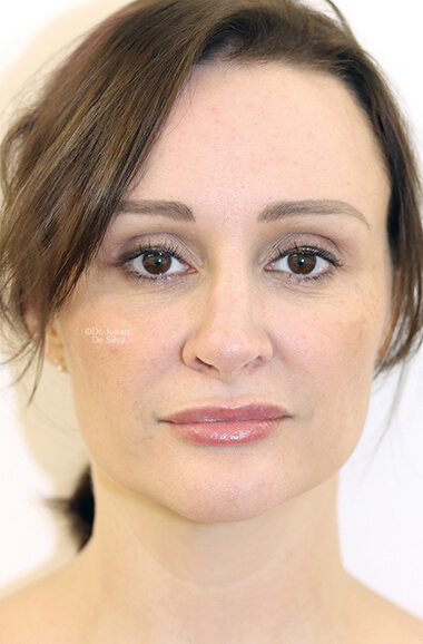 Female face, after Nose Re-Shaping treatment, front view, patient 107