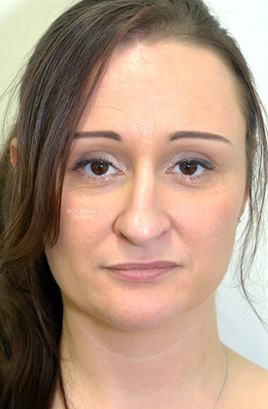 Female face, before Nose Re-Shaping treatment, front view, patient 107