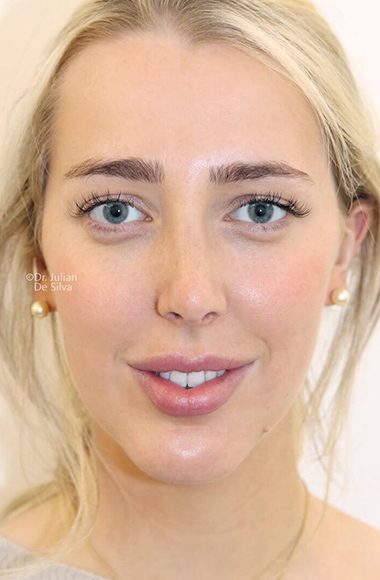 Female face, after Nose Re-Shaping treatment, front view, patient 108