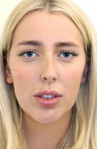Female face, before Nose Re-Shaping treatment, front view, patient 108