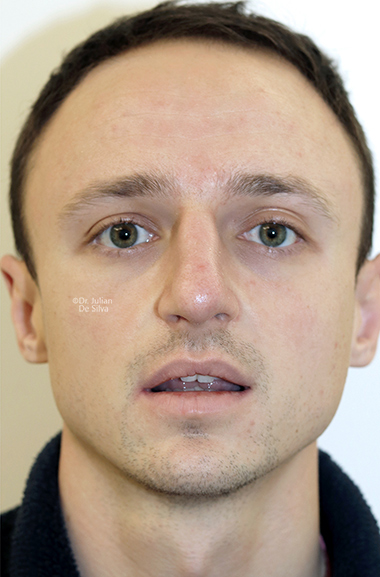 Male face, after Nose Re-Shaping treatment, front view, patient 109