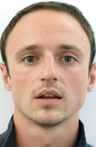 Male face, before Nose Re-Shaping treatment, front view, patient 109