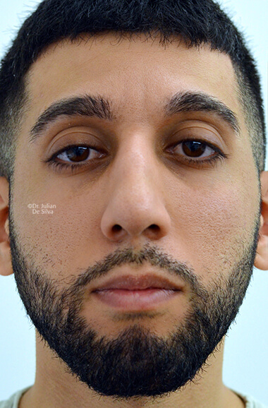 Male face, before Nose Re-Shaping treatment, front view, patient 110