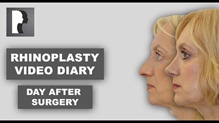 Rhinoplasty - video diary