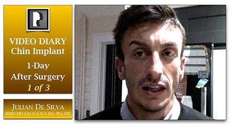 Chin Implant Video Diary (CVD1)
