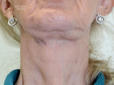 Female neck, After Facelift and Neck Lift Treatment, front view, patient 56