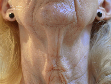 Female neck, Before Facelift and Neck Lift Treatment, front view, patient 56