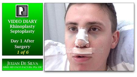 Rhinoplasty Video Diary (VD17)