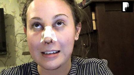 Chin Implant and Rhinoplasty Video Diary