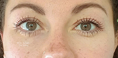 Woman's face, after Eyelid Surgery (Blepharoplasty) Treatment, front view, patient 142