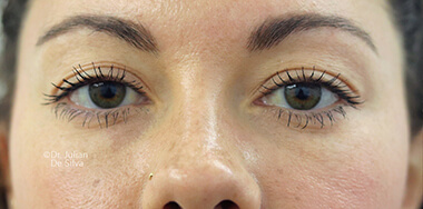 Woman's face, before Eyelid Surgery (Blepharoplasty) Treatment, front view, patient 142