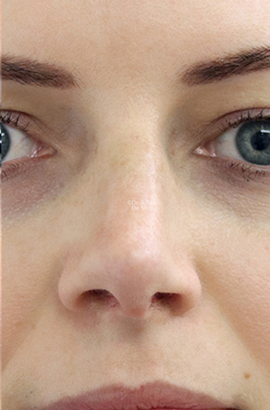 Female face, after Nose Re-Shaping treatment, front view, patient 111